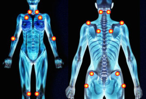 acupuncture for fibromyalgia st clair west forest hill toronto