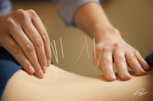 acupuncture for low back pain forest hill st clair toronto