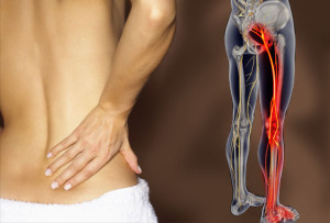 Massage Therapy Treatment for Sciatica st clair west forest hill toronto