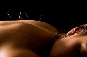 acupuncture for insomnia st clair west forest hill toronto