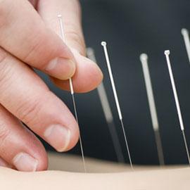 acupuncture st clair west toronto